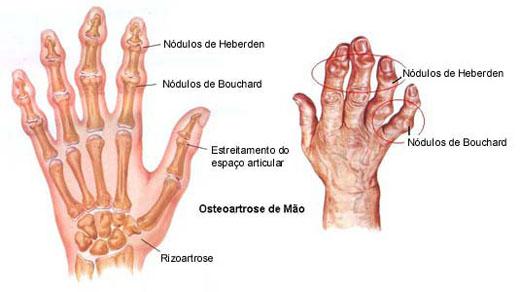 tratamento artrose no joelho