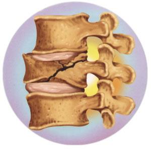 Resultado de imagem para fratura vértebra