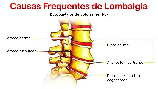Problemas de Coluna - Lombalgia - Lerdort