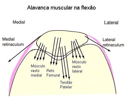 artroza deformantă a articulației patellofemorale)